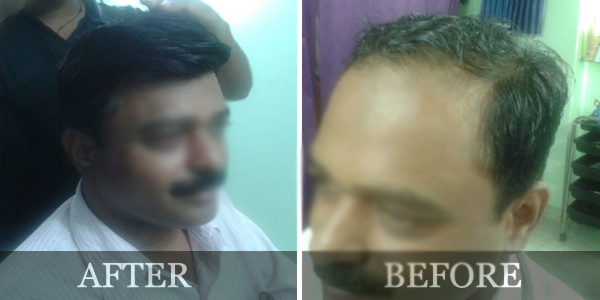Innovation care aundh pune hair replacement non surgical hair we at innovation care have devised a special treatment for hair losshair thinningpre mature hair graying dandruff etc pmusecretfo Choice Image