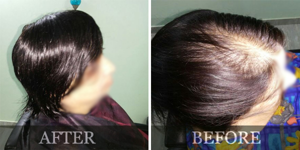 Hair transplant in pune aundh