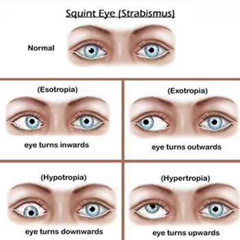 How To Cure Strabismus Naturally